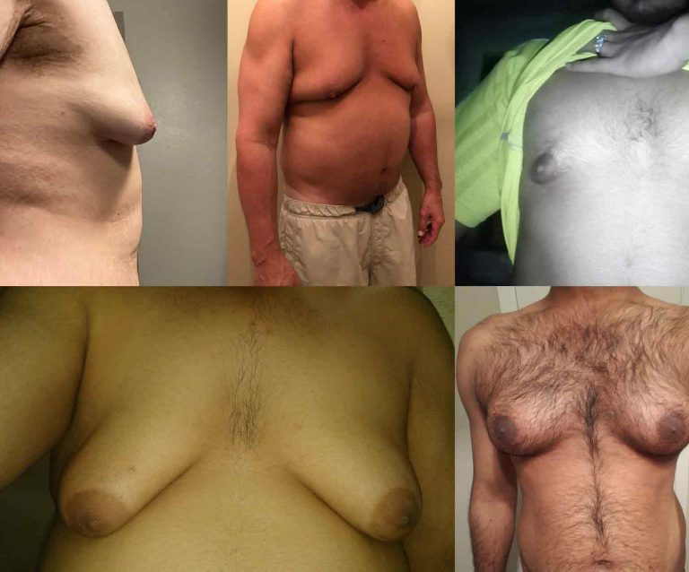 Enlarged breasts in men (gynecomastia) and some tips how to remove boobs fast